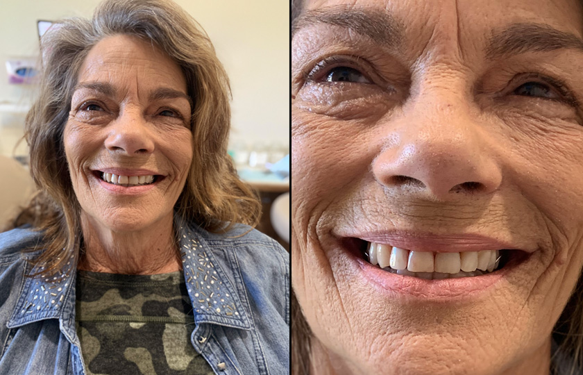 same day tooth extracted and a partial denture in Thibodaux LA
